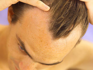 Home Remedies Baldness