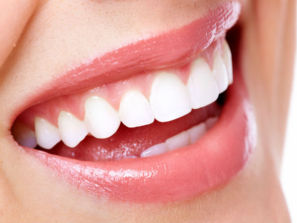 Smart bleach laser treatment for whitening your teeth