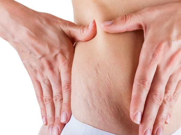 Ayurvedic ingredients to remove stretch mark