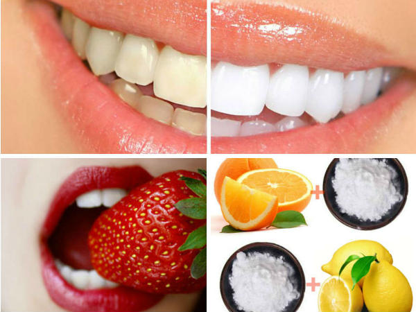 Instant remedies for teeth whitening