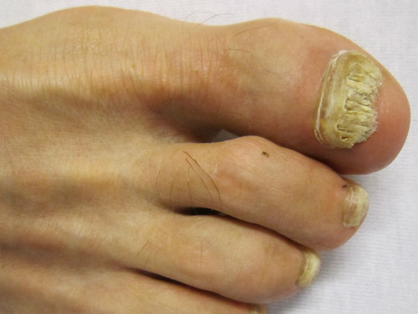 Natural remedies for decayed toenail