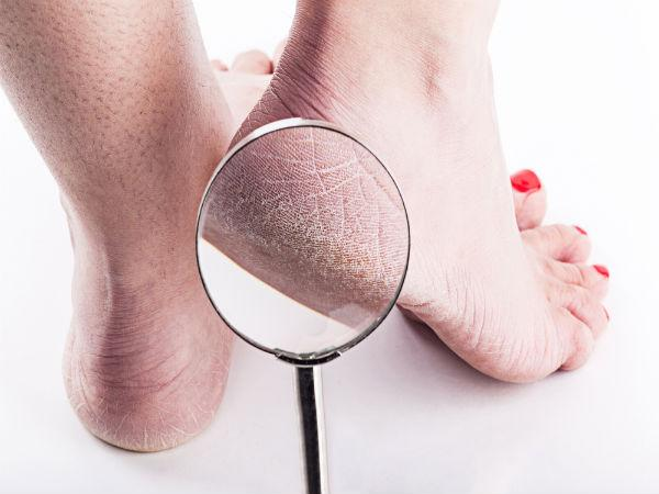 Home remedies to get soft feet