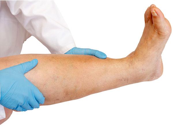 perne din revizuiri varicose
