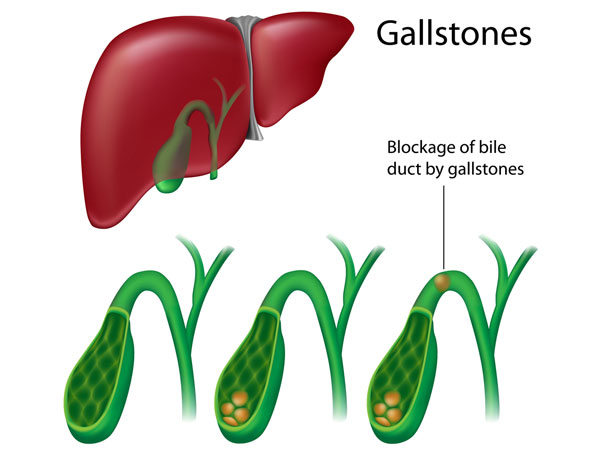 Gall Bladder may Increase Heart Diseases