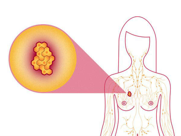 how to avoid breast cancer in tamil