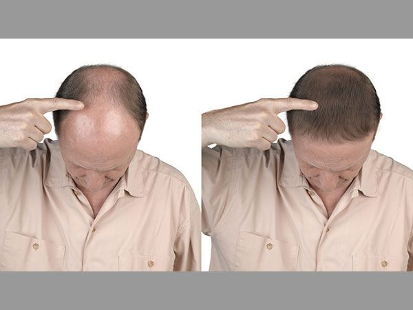Diet To Reverse Hair Loss: Best Foods For Hair Growth