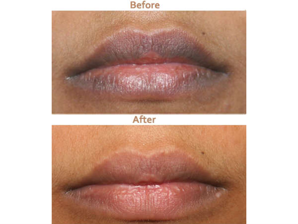Amazing Remedy That Makes Your Lips Soft And Pink In Just 10 Minutes