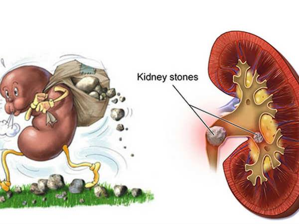 Natural Remedy For Melting Kidney Stones And Gall Bladder