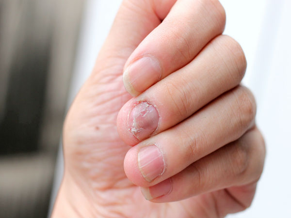 home remedies to treat nail infection