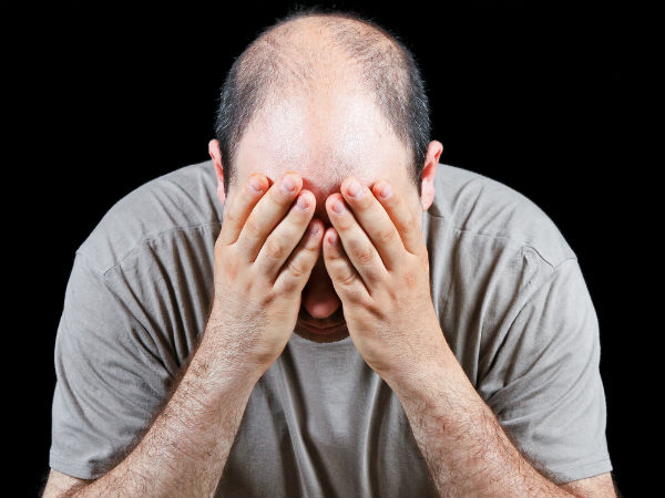6 Foods that stop hair fall and baldness