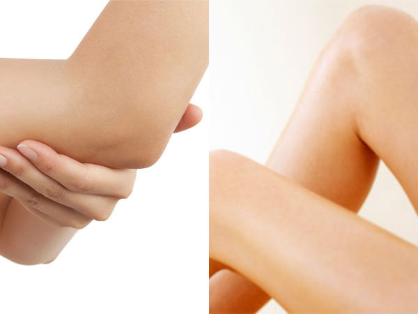 How to get rid of dark knee using  home remedies