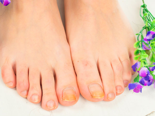 Home remedies to treat toenail fungal infection