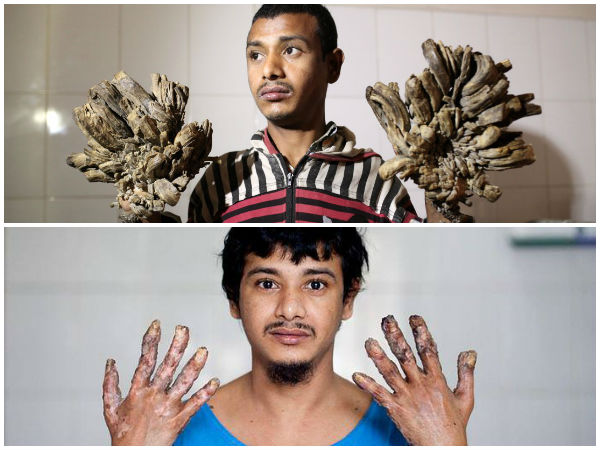 Tree Man Who Got Cured Of His Rare Condition!