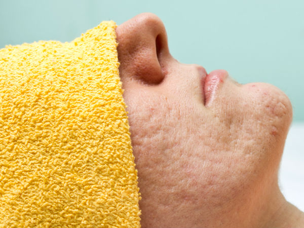 With the Help of These 2 Ingredients, You Will no Longer Have Pores