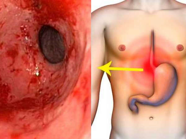 Eliminate Gastritis & Heartburn Forever With These Natural Remedies!