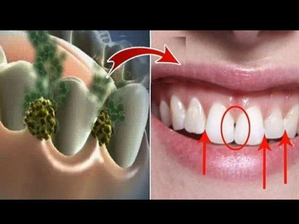 0Oils To Keep Your Gum And Teeth Strong