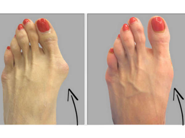 How To Get Rid Of Bunions Completely Natural