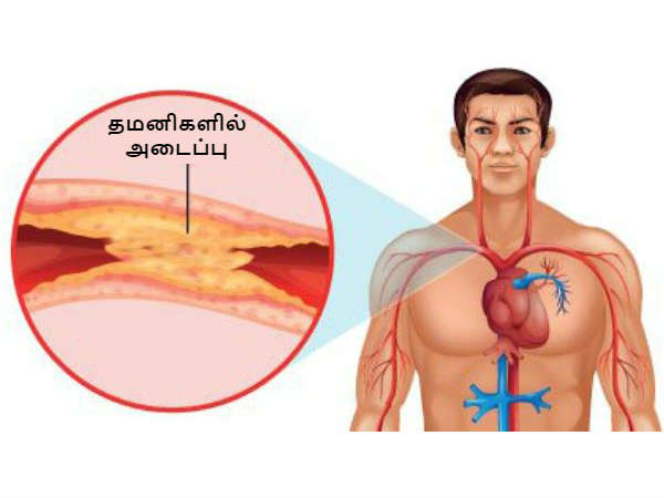 Clear Clogged Arteries with These Simple yet Powerful Drink