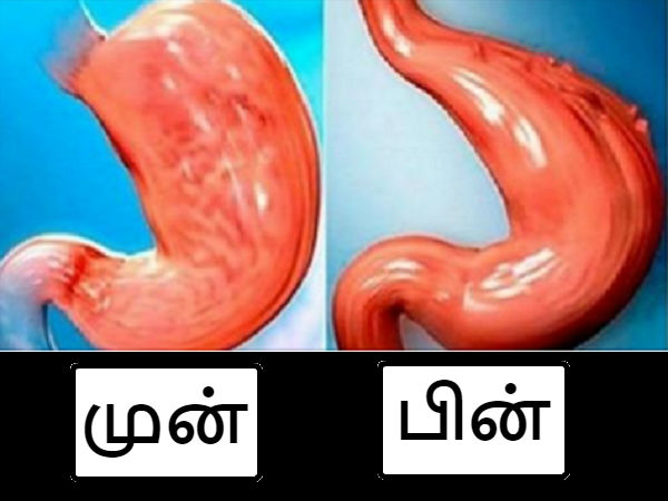 How To Reduce Your Stomach Naturally And Without Surgery!
