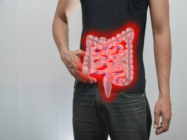 Risk Factors that Contribute to Small Intestinal Bacterial Overgrowth