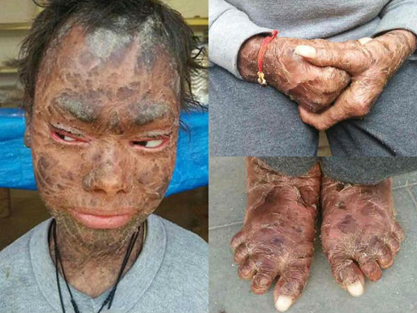 This Girl Sheds Her Skin Every 6 Weeks!
