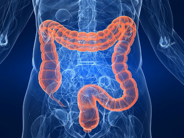 How To Cut Colorectal Cancer Risk