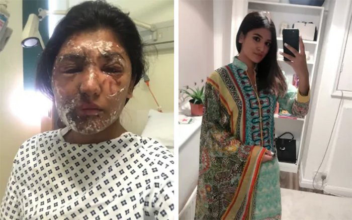 Acid Victim Who Survived Her Attack Shares Her Story !