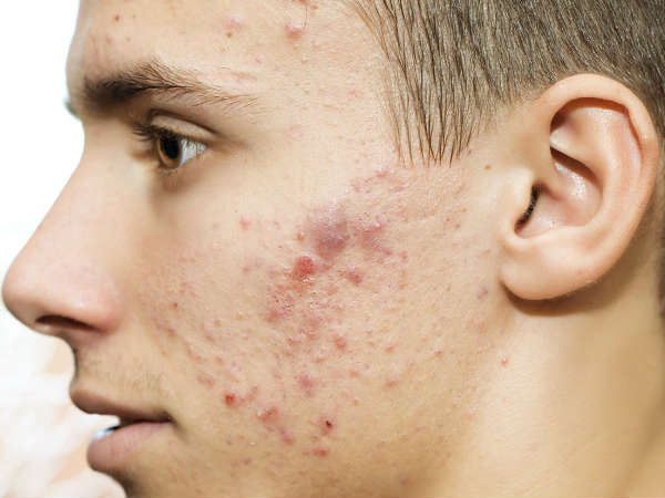 How to deal acne with home remedies