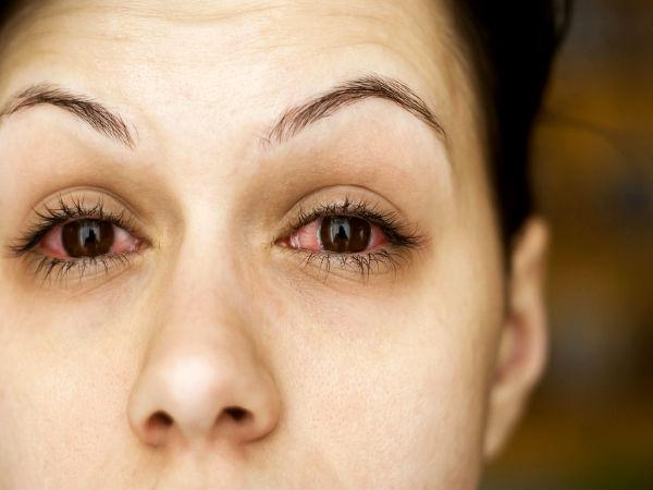 False eye lashes may damage your eye