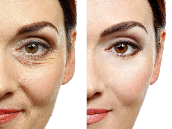 Non surgical collagen remodelling to prevent ageing