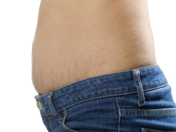 Useful remedies to remove stretch mark