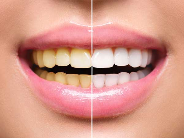 activated charcoal capsules for teeth whitening