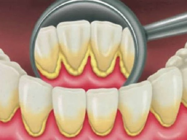 Simple home remedies for Plaque on Your Teeth
