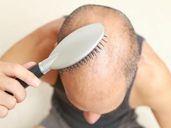 hair transplantation is only permanent solution for baldness