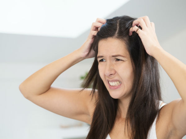 Home remedies to get rid of Itchy scalp using home ingredients
