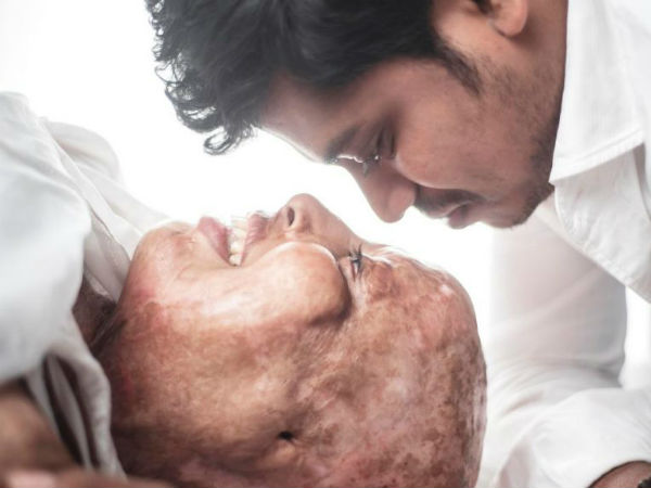 Emotional love story about a acid attack survivor
