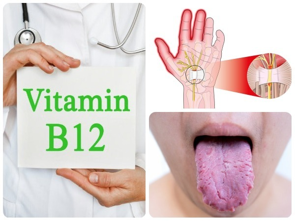 Vitamin B12 Deficiency Symptoms And Foods To Eat