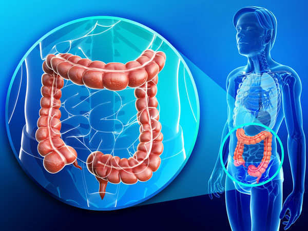 Top Foods That Prevent Colon Cancer
