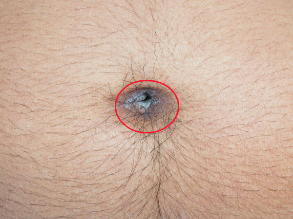 Best Ways To Treat A Belly Button Infection Naturally