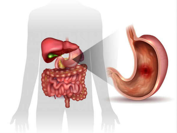 Home Remedies For Peptic Ulcer Pain For People At All Ages