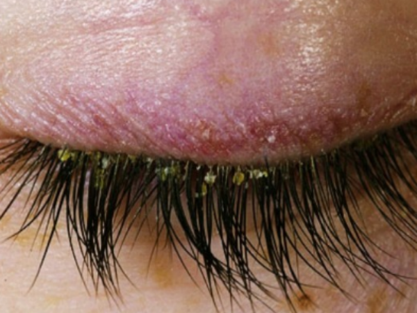 how to treat dandruff on eyelash
