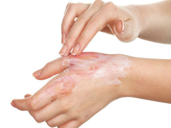 Home Remedies For Minor Burns in tamil