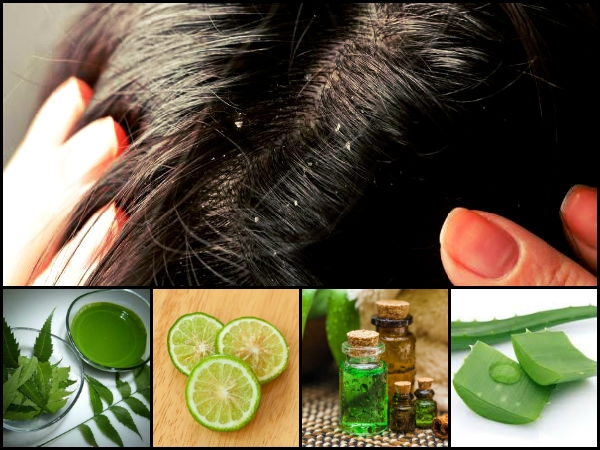 best ayurvedic treatment or cure for dandruff