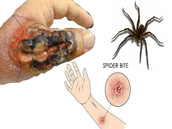 how do you treat a spider bite at home