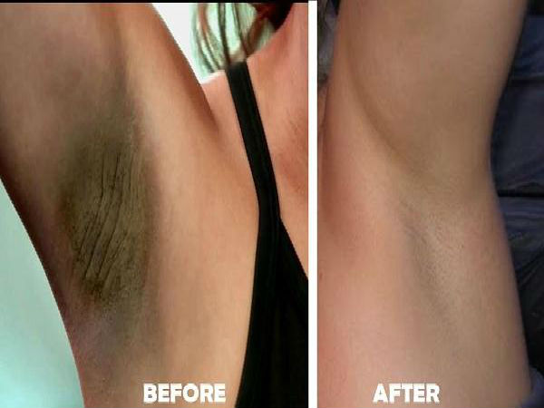 Does Potato Help In Getting Rid Of Dark Underarms?