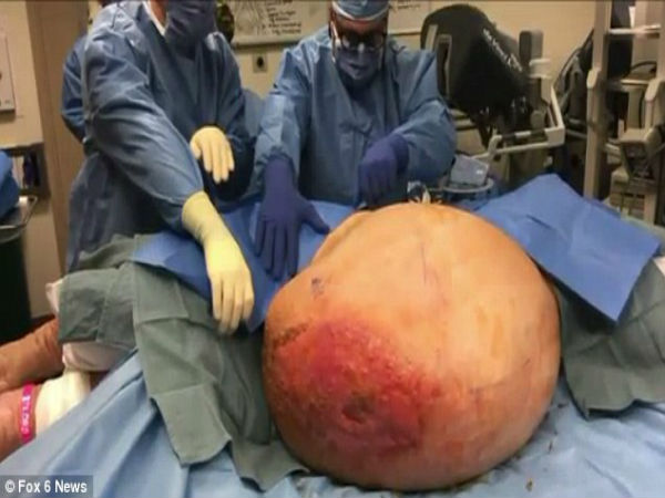 liposarcomas can top 70 pounds big fat tumors