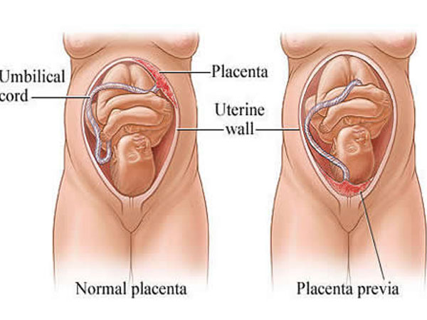 Placenta Previa: All You Need To Know