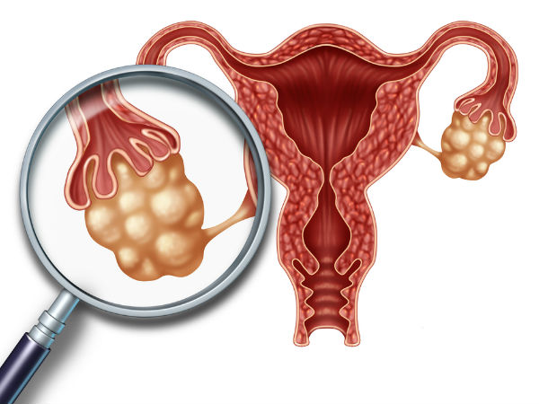 6 signs you've got an ovarian cyst that's about to become a big problem