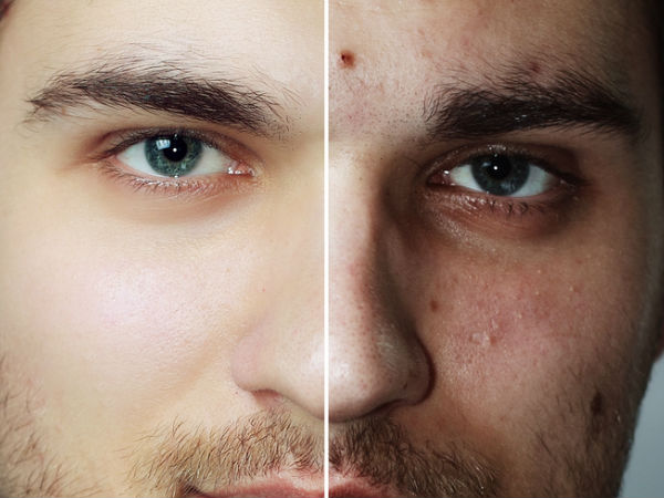Tips To Prevent And Reduce Acne Breakouts In Men