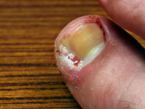 How to Get Rid of Toenail Fungus Fast Naturally at Home